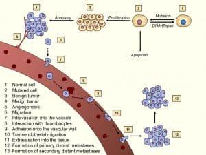 Model of tumorigenesis