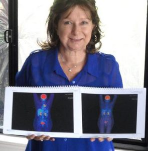 Sharon Kelly poses with her scans before and after using cannabis oil